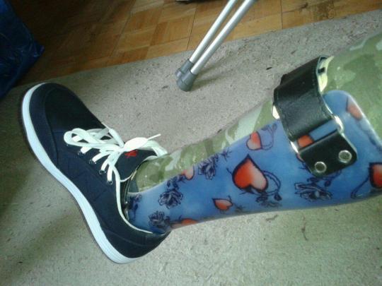 Leg Splint :-D